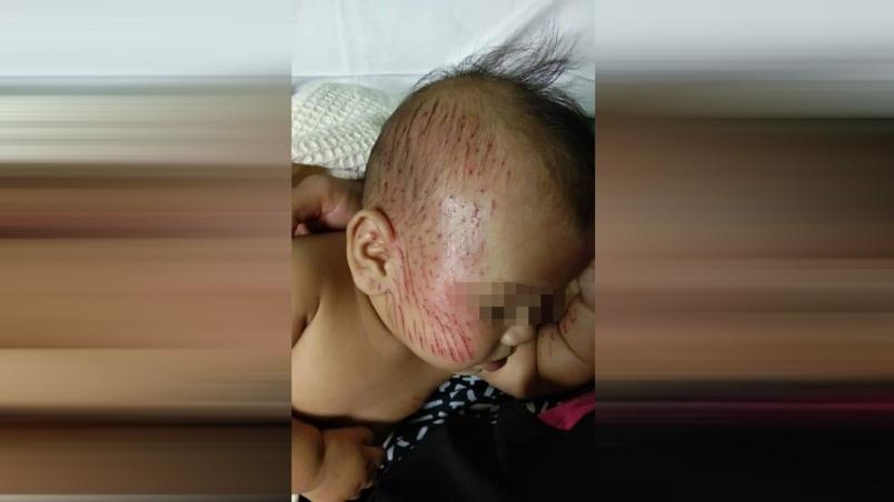 Kecederaan dialami Megat Muhammad Kays yang terkena buah durian gugur di Felda Jengka 17, Pahang sem